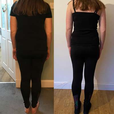 Before and after fatloss